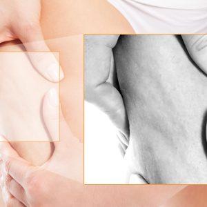 Alla scoperta della cellulite
