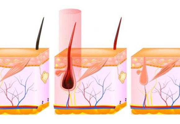 Come funziona l'epilazione laser